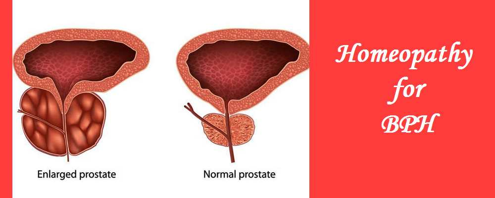 Homeopathy for Benign Prostate Hypertrophy (BPH) Treatment 1