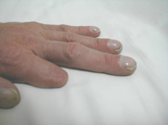 Fingernails And What They Reveal - Gabrielle Traub