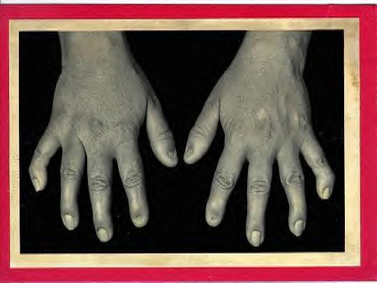 Nail Patella Syndrome