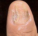 Paronychia due to ringworm