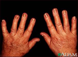 White hue at base of nails