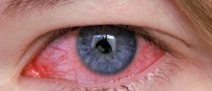 Homeopathic medicine for Eyes Diseases 1