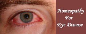 homeopathic medicine for eye disease