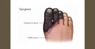 Homeopathic medicine for Gangrene