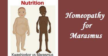 Homeopathic medicine for Marasmus