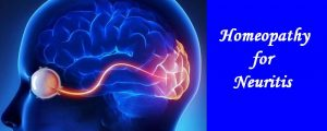 Homeopathy for Neuritis Treatment 1