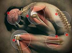 cause of pain, types of pain, pain relief and pain treatment with homeopathy remedies
