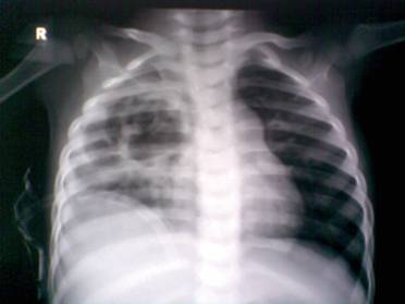 Right Lung Abscesses 3
