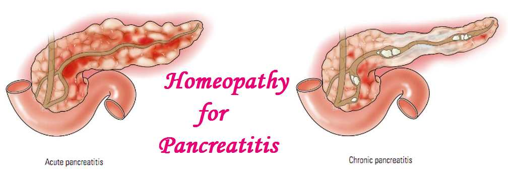Homeopathy medicine to reduce belly fat