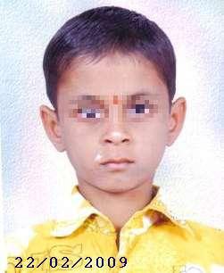 Vitiligo Case 1