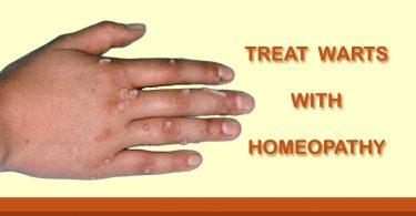 warts homeopathy