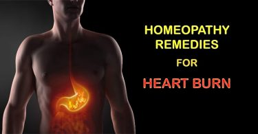homeopathy heartburn remedi