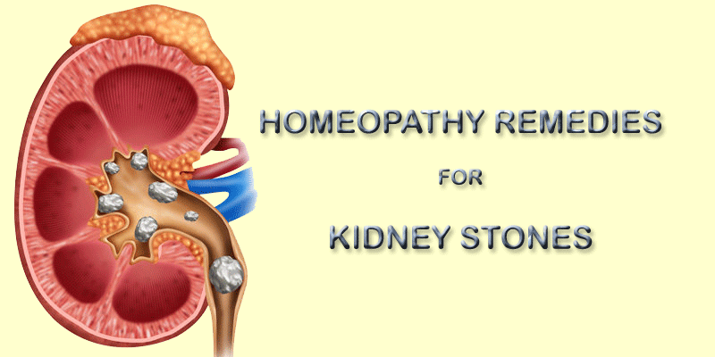 kidney stones homeopathy