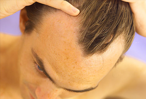 Hair Loss Treatment homeopathic remedies
