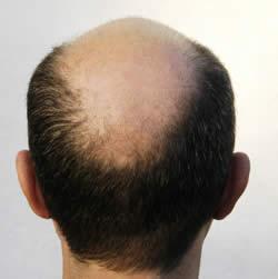 Trattamento di perdita dei capelli