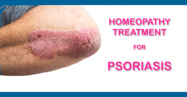 psoriasis homeopathy treatm
