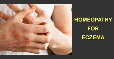 homeopathy treatment for eczema homeopathic remedies
