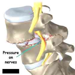 A Case of Spine Compression and Nerve Damage 1