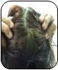 A Case of Lichen Planus and Alopecia Areata 13