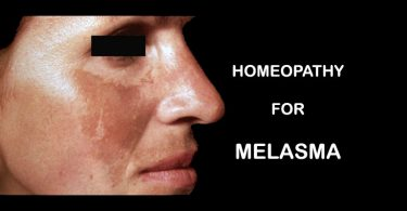 melasma homeopathy