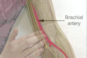brachial artrey