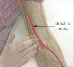 Thoracic Outlet Syndrome 30310702 further Presentation furthermore Ulnar Nerve Anatomy Course Motor Sensory Clinical Significance also Behandlungsangebot Besenreiser likewise 2199438. on the radial vein