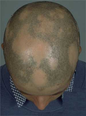 homeopathy remedies for alopecia areata hair loss