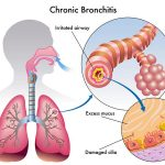 Asthmatic Bronchitis in an 18 Month Old Boy