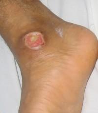 ulcer leg