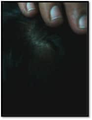 alopecia-areata-after