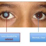 cataract-homeopathy-treatment
