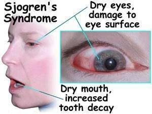 homeopathjc medicine for sjogrens syndrome