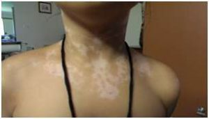 vitiligo homeopathy treatment for leucoderma