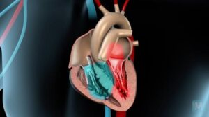 heart pain angina pectoris