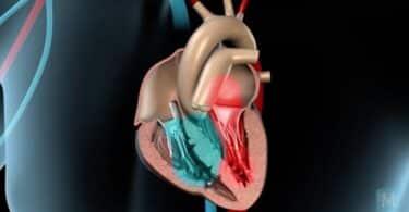 heart pain angina pectoris