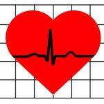 A Case of Cardiac Arrhythmia