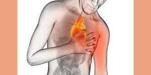 The Case of the Caged Heart - A Case of Vasospastic Angina 1