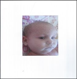 A Fifteen Week Old Baby with Eczema,  Allergy and Faulty Nutrition 1
