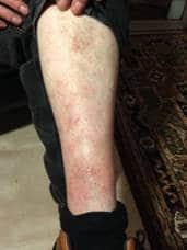 A Case Study -  Skin Complaint 10