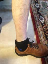 A Case Study -  Skin Complaint 13