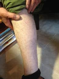 A Case Study -  Skin Complaint 14
