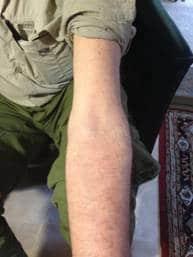 A Case Study -  Skin Complaint 15