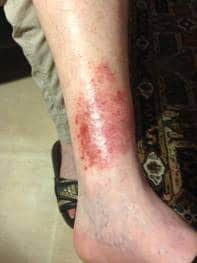 A Case Study -  Skin Complaint 16