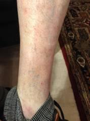 A Case Study -  Skin Complaint 18
