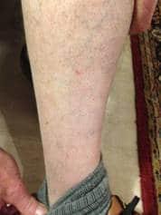 A Case Study -  Skin Complaint 19
