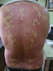A Case of Psoriasis 1