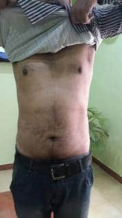 A Case of Psoriasis 6