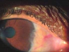 Evidence-Based Homoeopathy: A Case of Pterygium 5