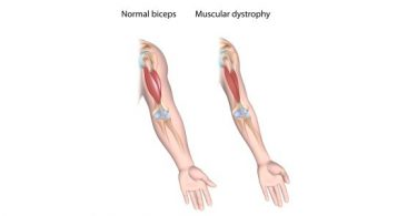 dystrophic arm muscle