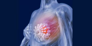 breast cancer cause symptoms treatment